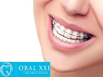 Sorriso Perfeito! Aparelho Dentário Mini Estético e KIT Branqueamento na Oral XXI em Lisboa por 39€.