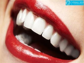 Limpeza Dentária, Polimento, Fluorização e Branqueamento com Jacto Bicarbonato na Oral XXI em Lisboa por 19€. Sorriso Perfeito!