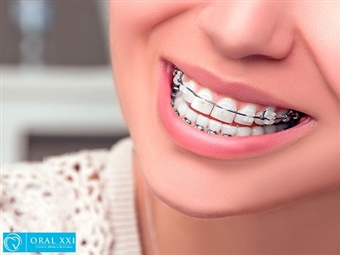 Aparelho Dentário Mini Estético, Aparelho de contenção, Consulta de Avaliação e KIT Branqueamento na Oral XXI em Lisboa por 39€.