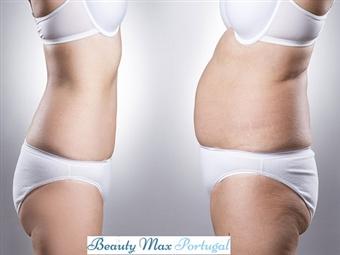 1 Sessão de Lipo Laser e OFERTA de Vibroterapia no BeautyMax em Lisboa por 28€. Tratamento para as gordurinhas indesejadas!