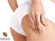 Combate a Celulite e a Flacidez com 2 sessões de vários tratamentos em 4 Clínicas Dubody.