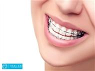 Aparelho Dentário Mini Estético, Aparelho de contenção e Consulta de Avaliação!