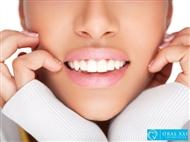 Limpeza Dentária, Polimento, Fluorização e Branqueamento com Jacto Bicarbonato na Oral XXI.